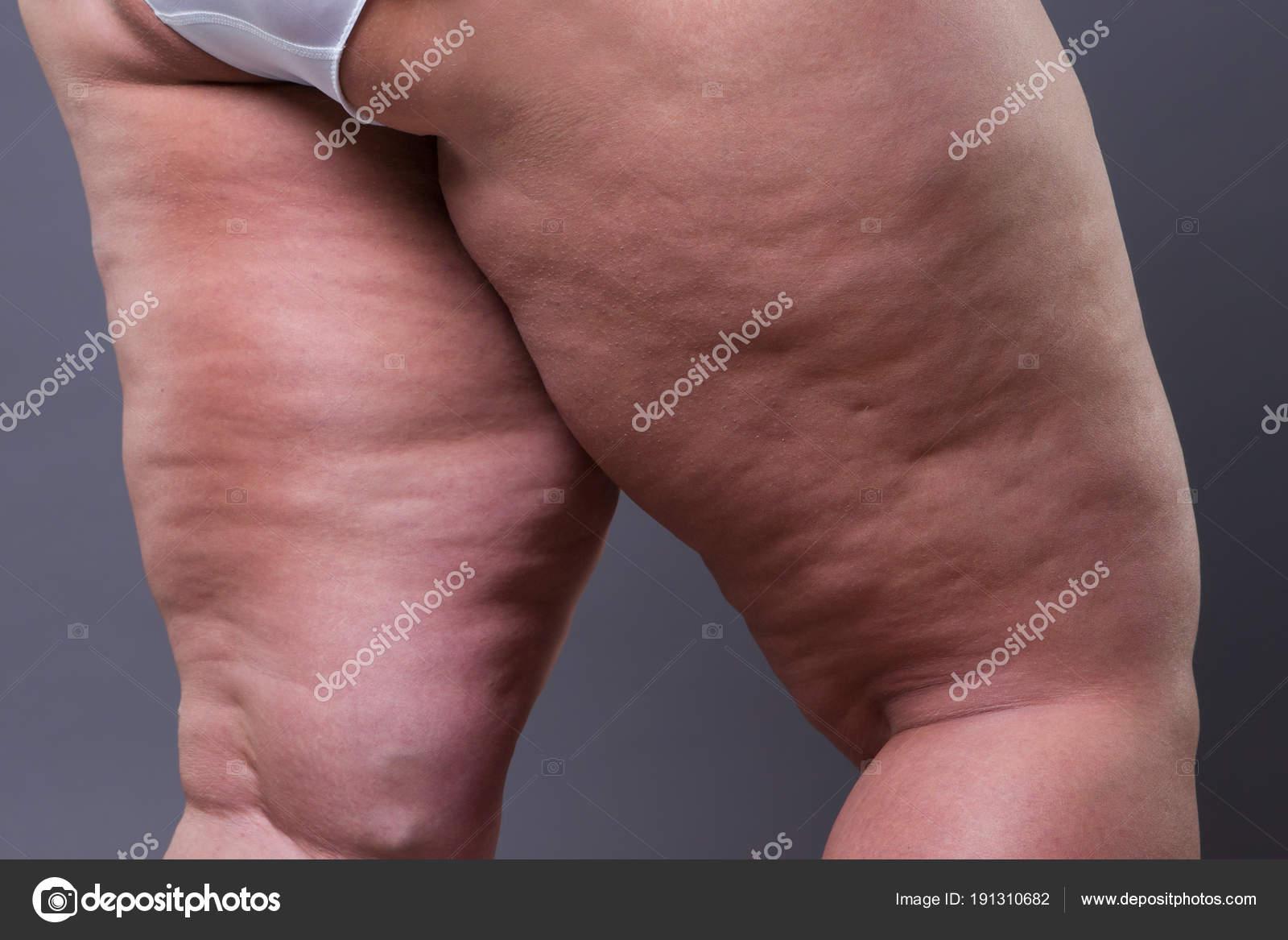 Обтруханные жирные ляжки на фото 13