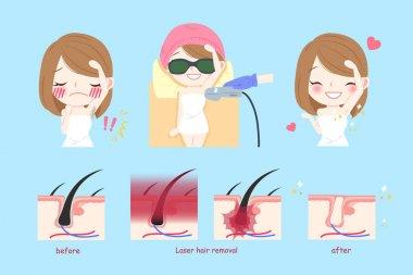 laser armpit hair concept