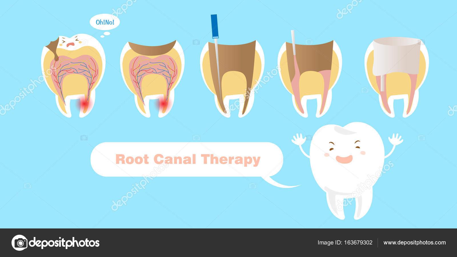 diente con tratamiento de conducto radicular — Archivo Imágenes ...