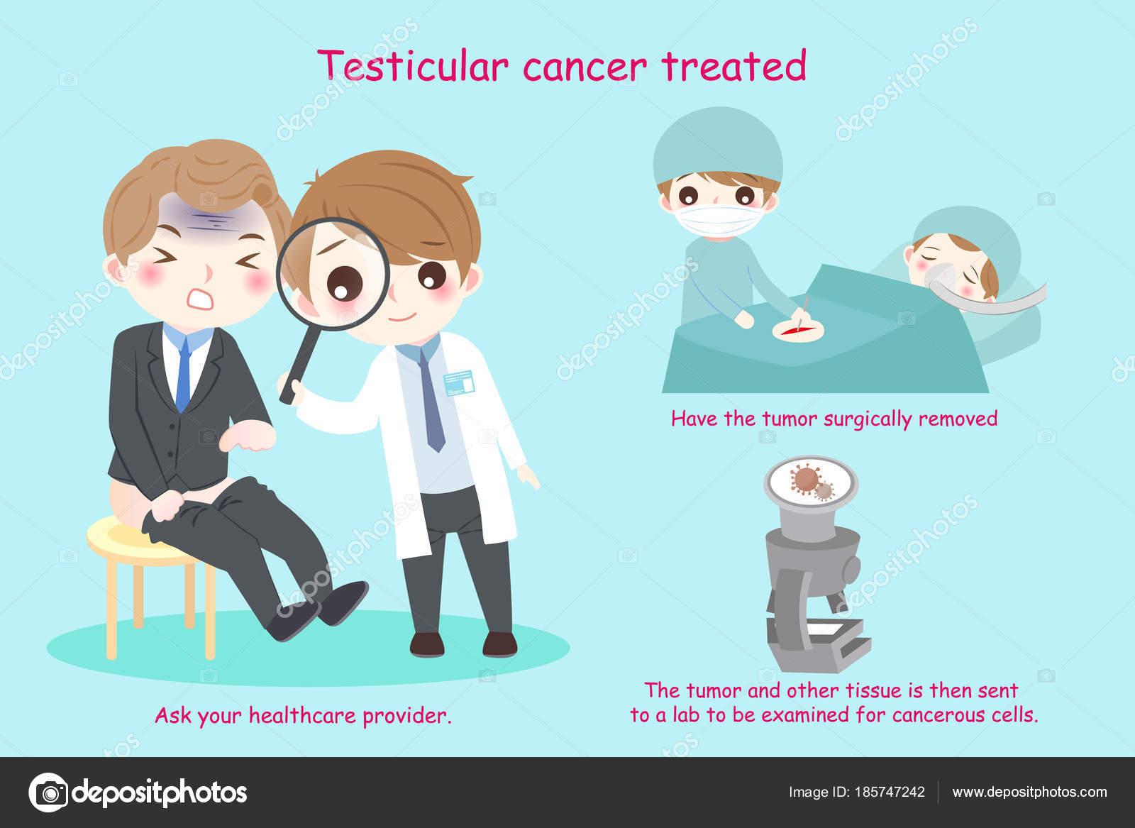 cáncer de próstata testicular