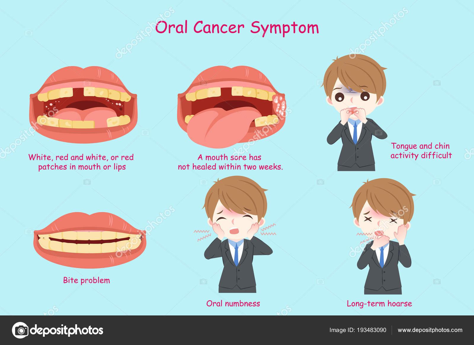 cancer bucal symptoms