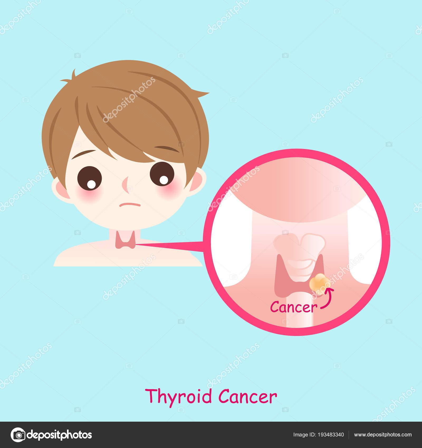 cancer tiroideo en hombres