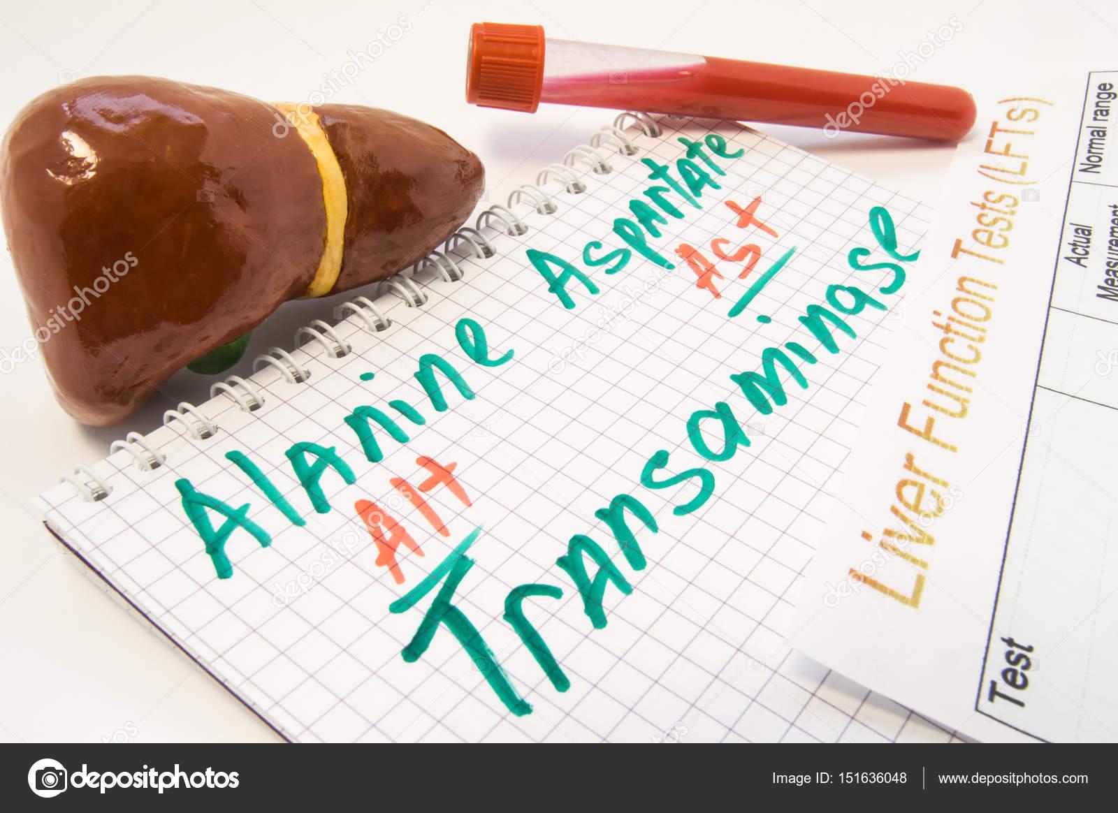 Alanin (Alt) und Aspartat-(Ast) Aminotransferasen, umgeben von Leber ...