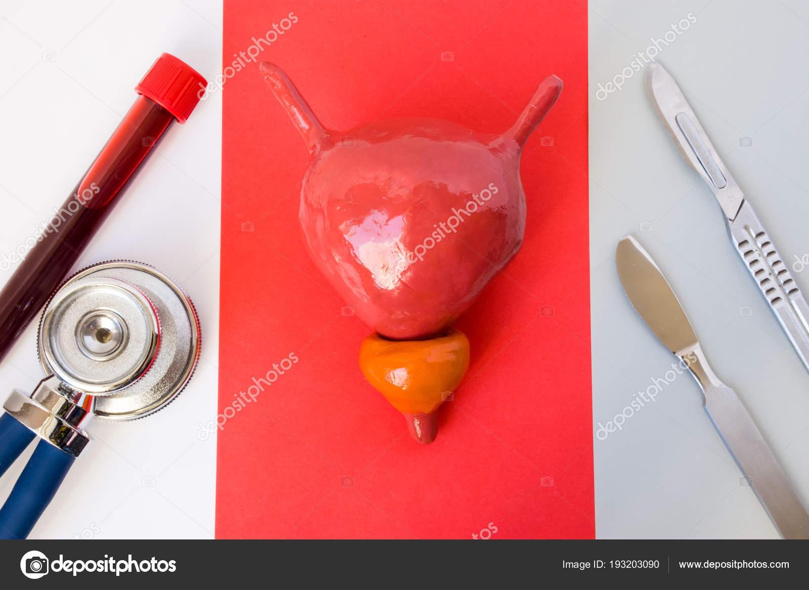 prostata del tubo rosso