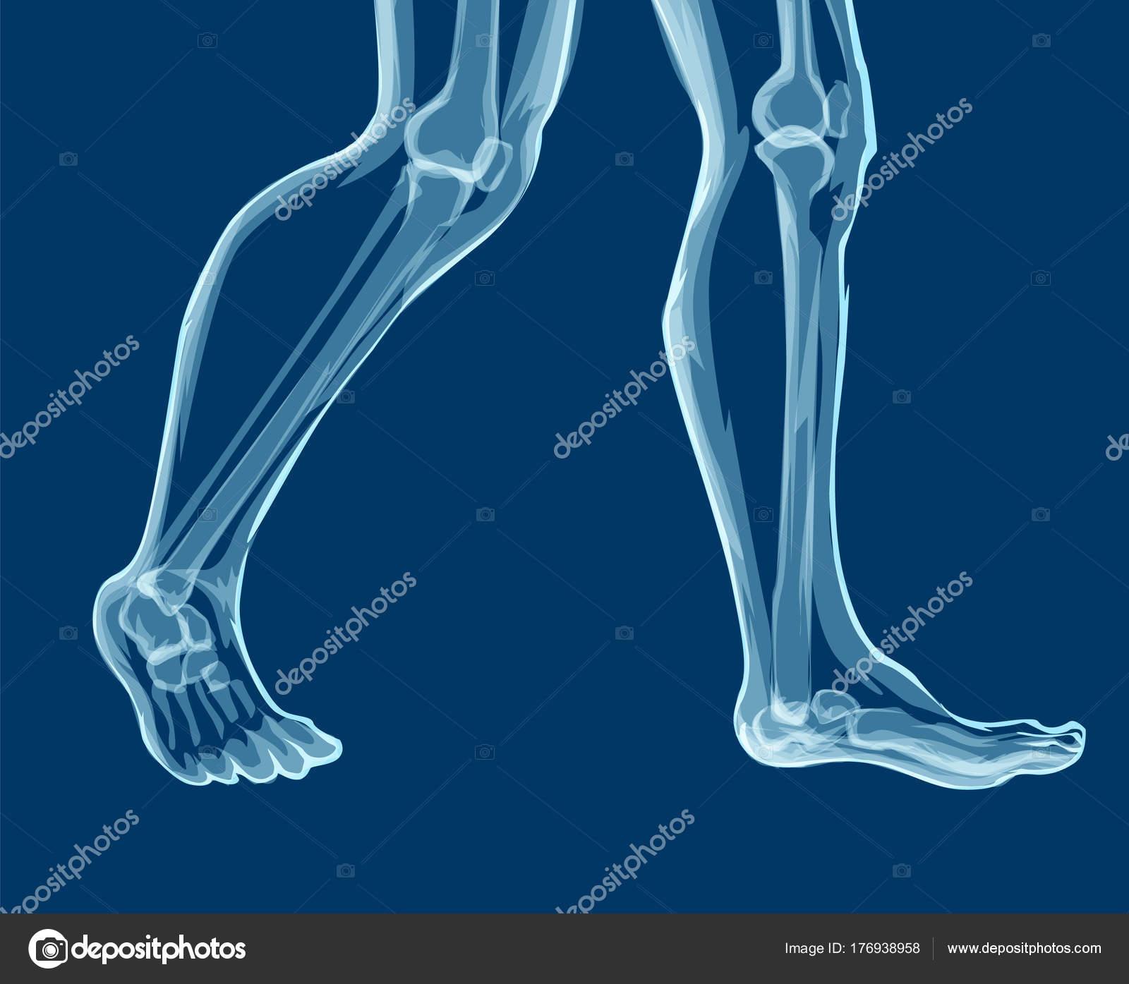 Huesos de la pierna humana, rayos x. Ilustración de vector de Mecial ...