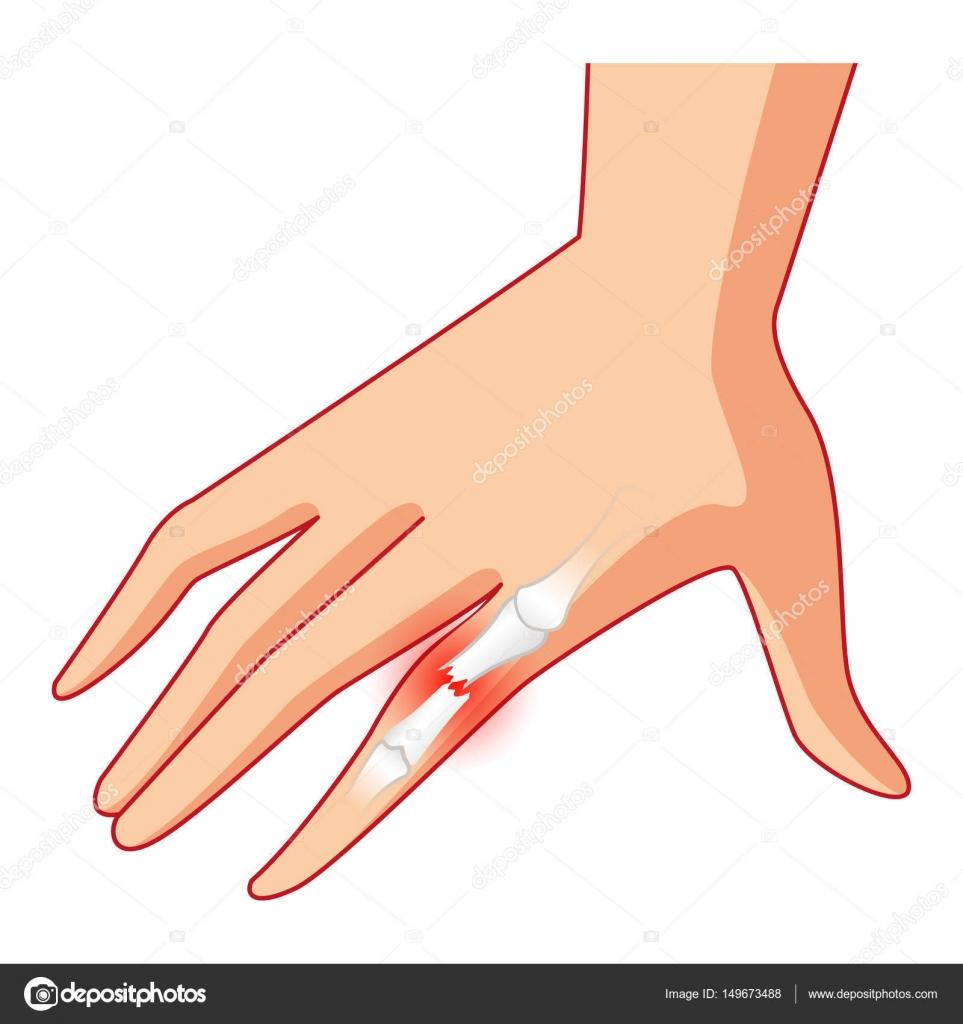 Arm Schmerzen, Knochen- und Finger Knochen, gebrochenen Arm, X-ray ...