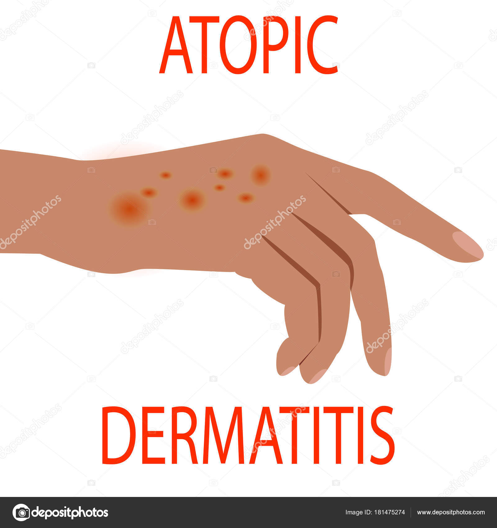 Atopic dermatitis health, medical, skin, pain, dermatitis