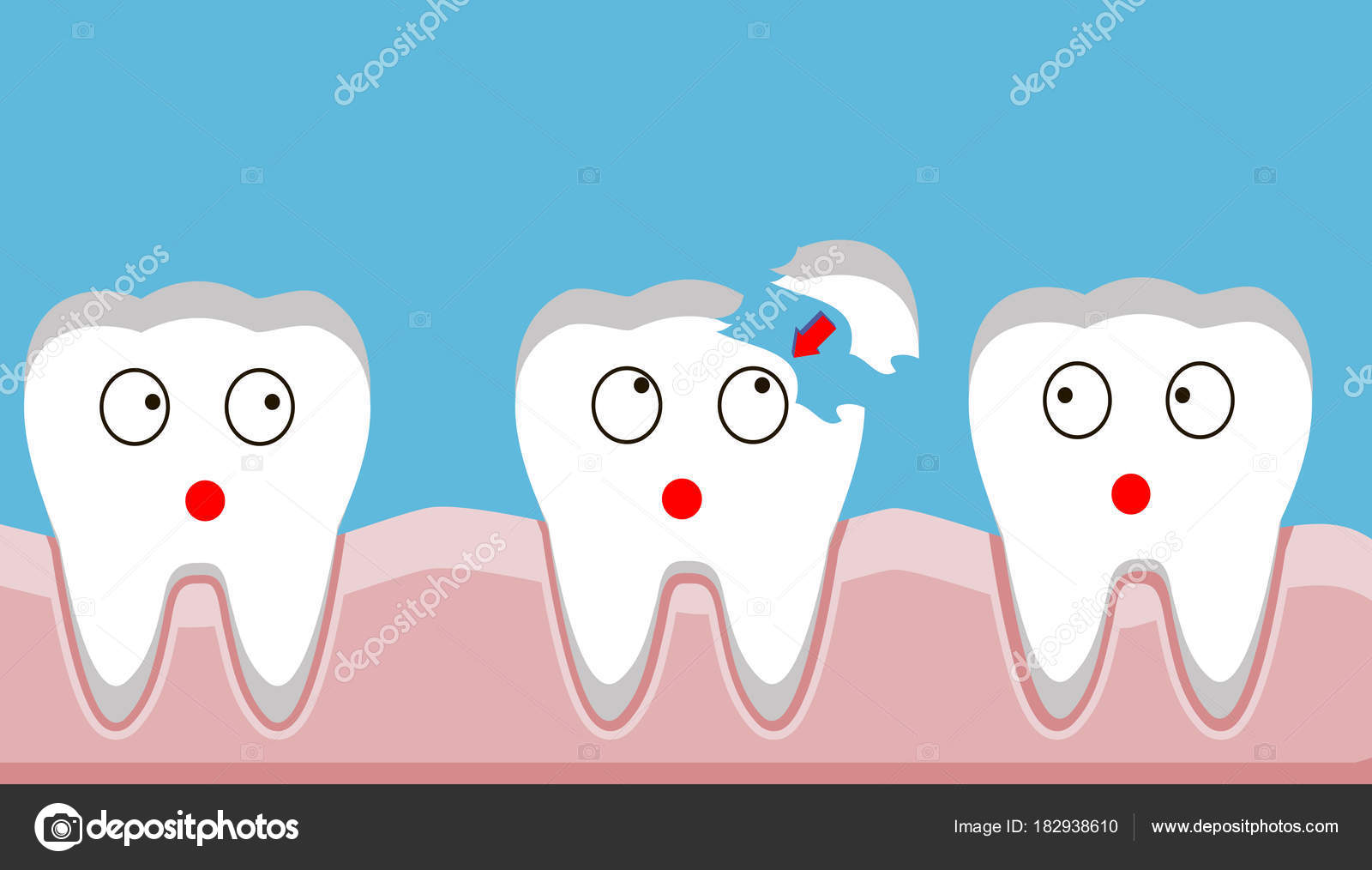 tooth fracture filling teeth trauma vector stock vector