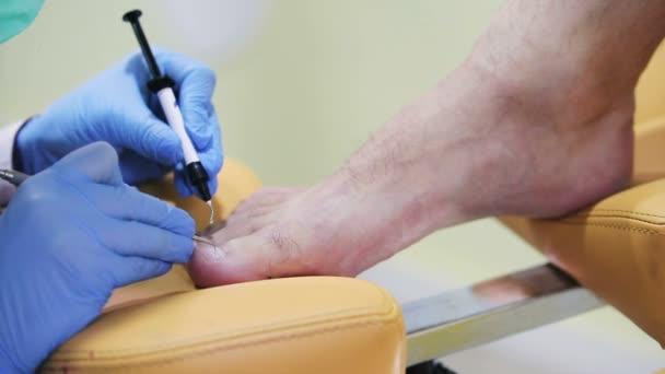 Medizinische Fußpflege für Männer