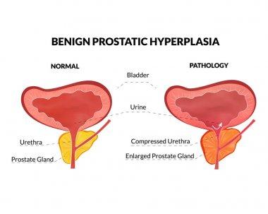 Prostatitis férfiaknál: okok, tünetek és kezelés