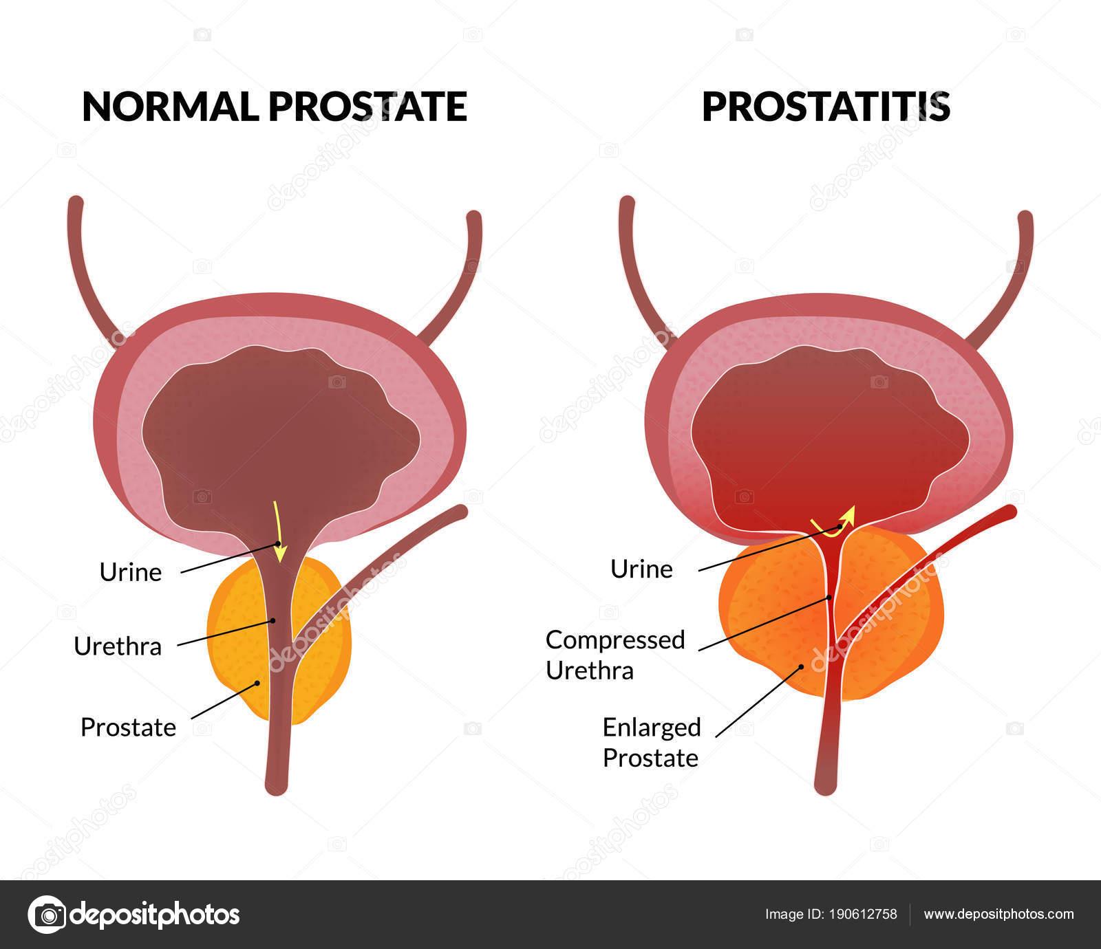 Hálózati kezelés prosztatitis
