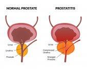 Prostatitis pathology poster