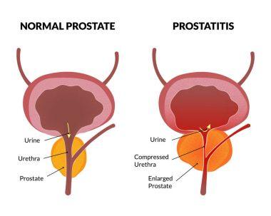 Prostatitis a férfiakban f