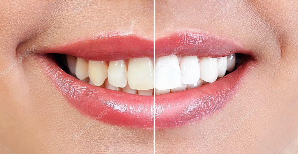 Demonstracao De Resultado De Clareamento Dental Antes E Apos O