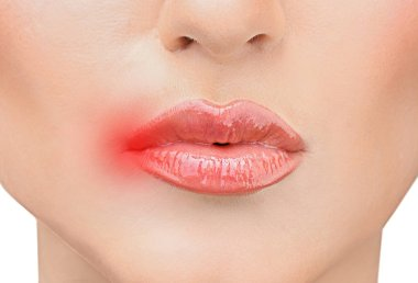Female lips with herpes virus, closeup