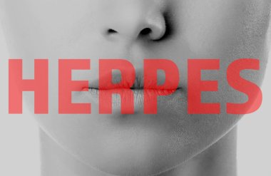Word HERPES and female lips on background
