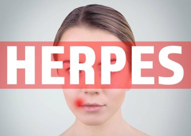 Word HERPES and woman on background