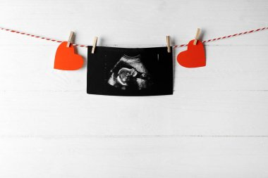 Ultrasound scan of baby on rope