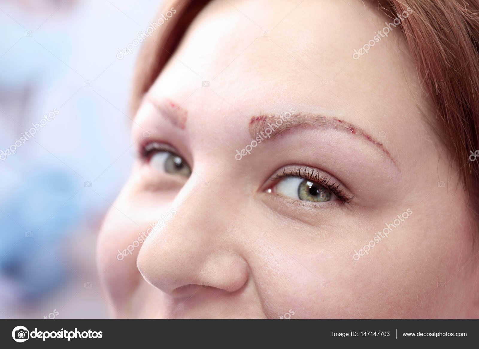 Eyebrow Tattoo Removal Stock Photo Belchonock 147147703