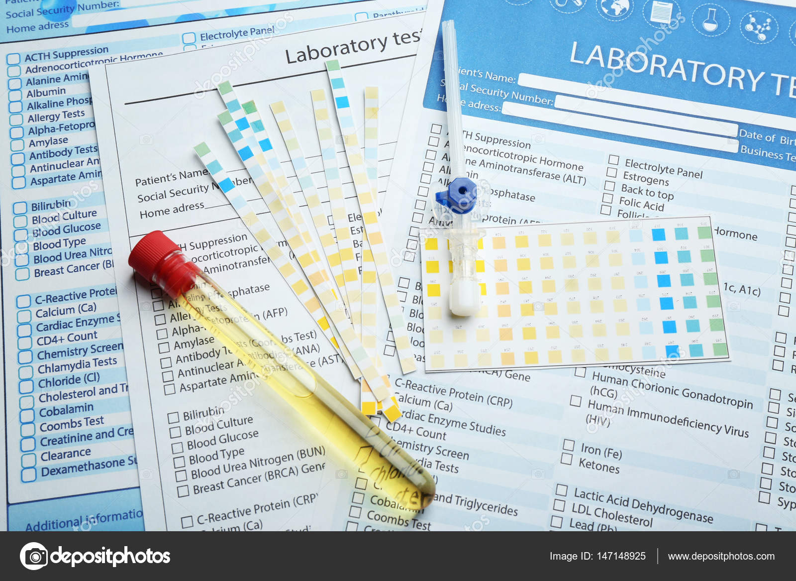 Medical equipment and laboratory test forms — Stock Photo ... on anatomy test forms, medical pathology lab results chart, blood work order forms, blank laboratory forms, medical lab tests, quest lab test order forms, medical test results, laboratory test request forms, electrical test forms, laboratory blood requisition forms, urinalysis test forms, psychology test forms,