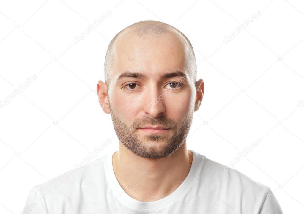 Mann Glatze Bart