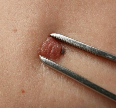 Removal of birthmark in clinic, closeup
