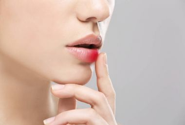 Female lips with herpes virus
