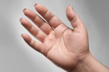 Female hand with dermatitis