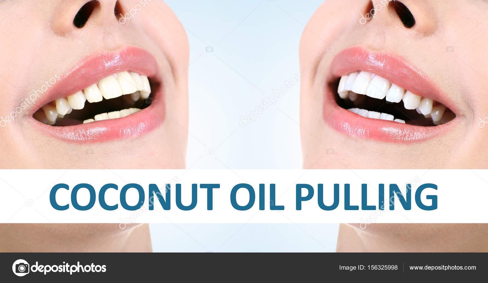 aceite de coco organico para blanquear dientes