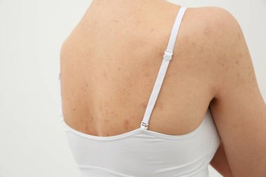 woman with rash on back