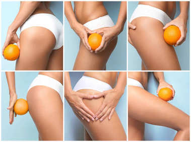 Collage of young woman with orange on color background. Cellulite problem concept