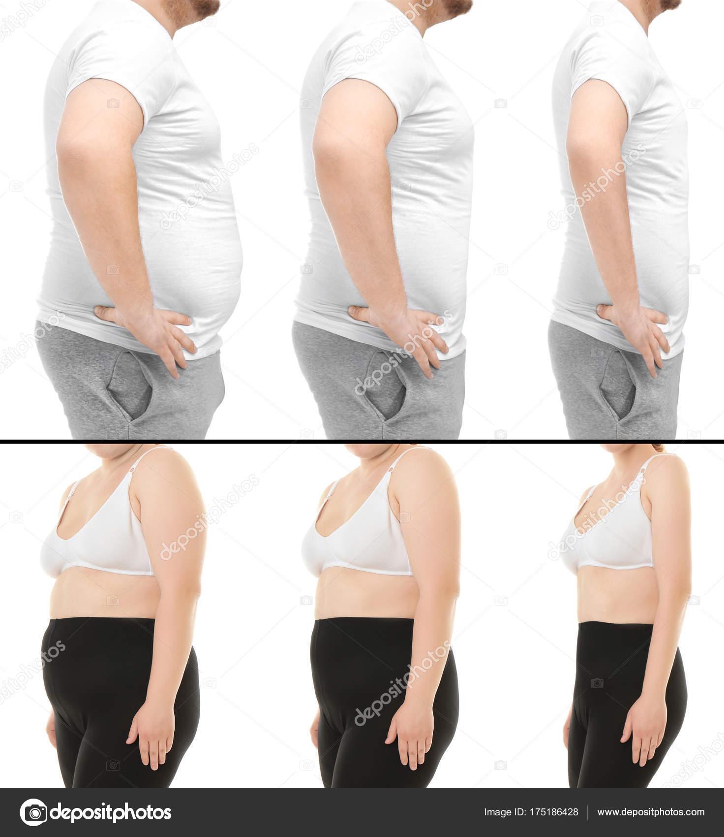 Imagenes de personas con perdida de peso