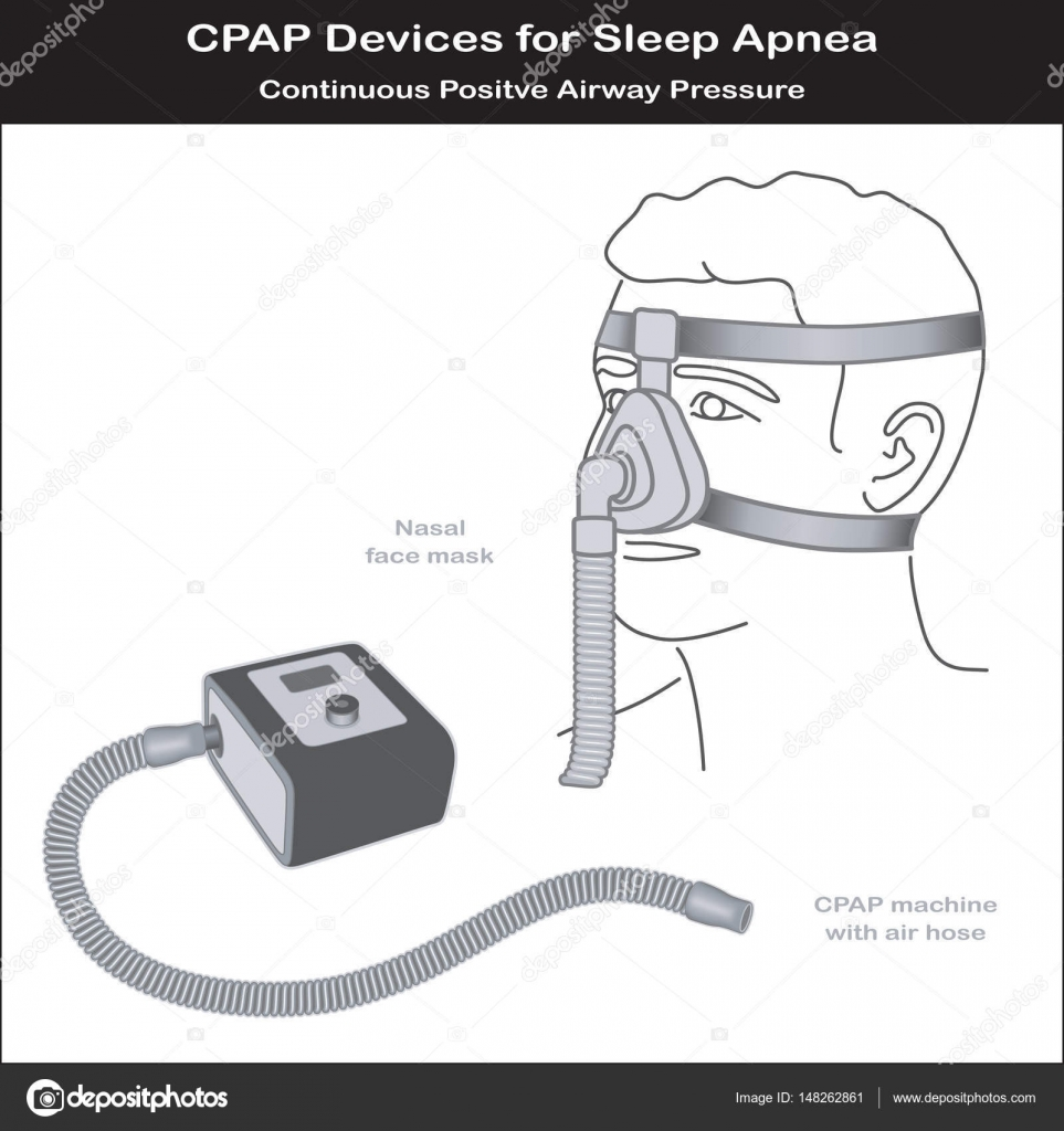 Sleep apnea cpap machine nose mask stock vector casejustin cpap machine with air hose nasal face mask on model continuous positive air pressure for treatment of sleep apnea and hypopnea eps8 compatible ccuart Images