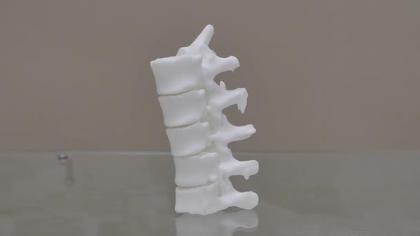 Vista laterale di plastica studio 3d stampante modello spina dorsale spinale del nervo spinale, vertebre, ortopediche