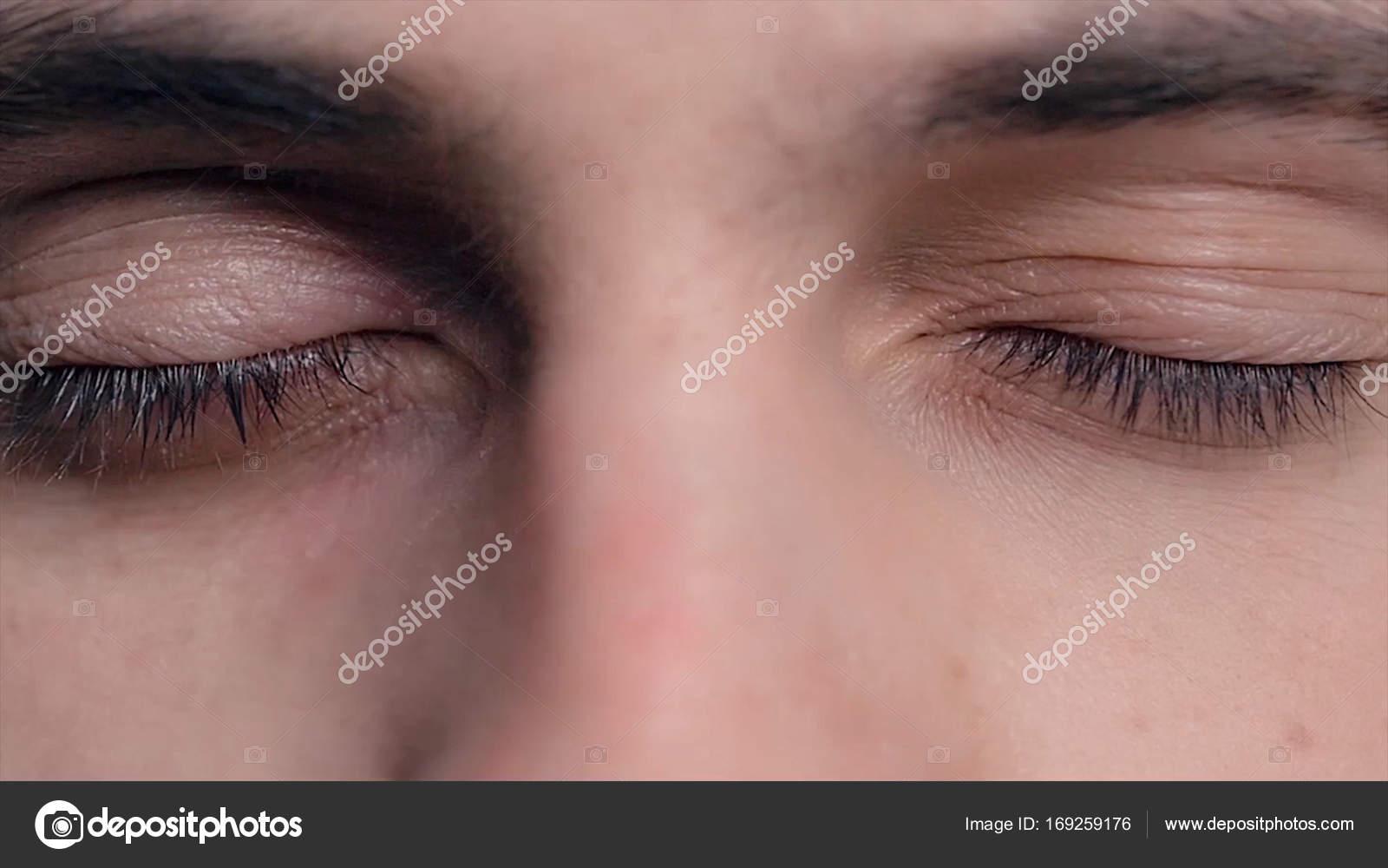 138f60f995 Closeup των νέων επανδρώνει μπλε μάτια με προβληματικές επιδερμίδες με τάση  ακμής και επιλεκτική εστίαση. Close-up πορτρέτο ενός νεαρού άνδρα με μπλε  μάτια ...