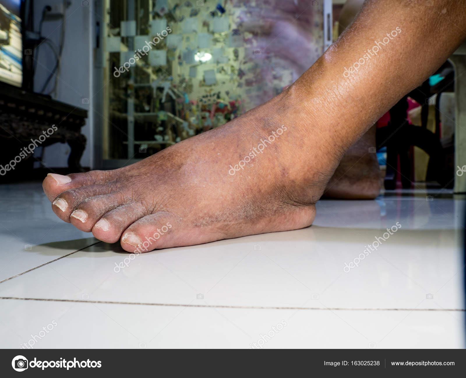 Dr. Diag - Rheumatoid arthritis (korai stádium)