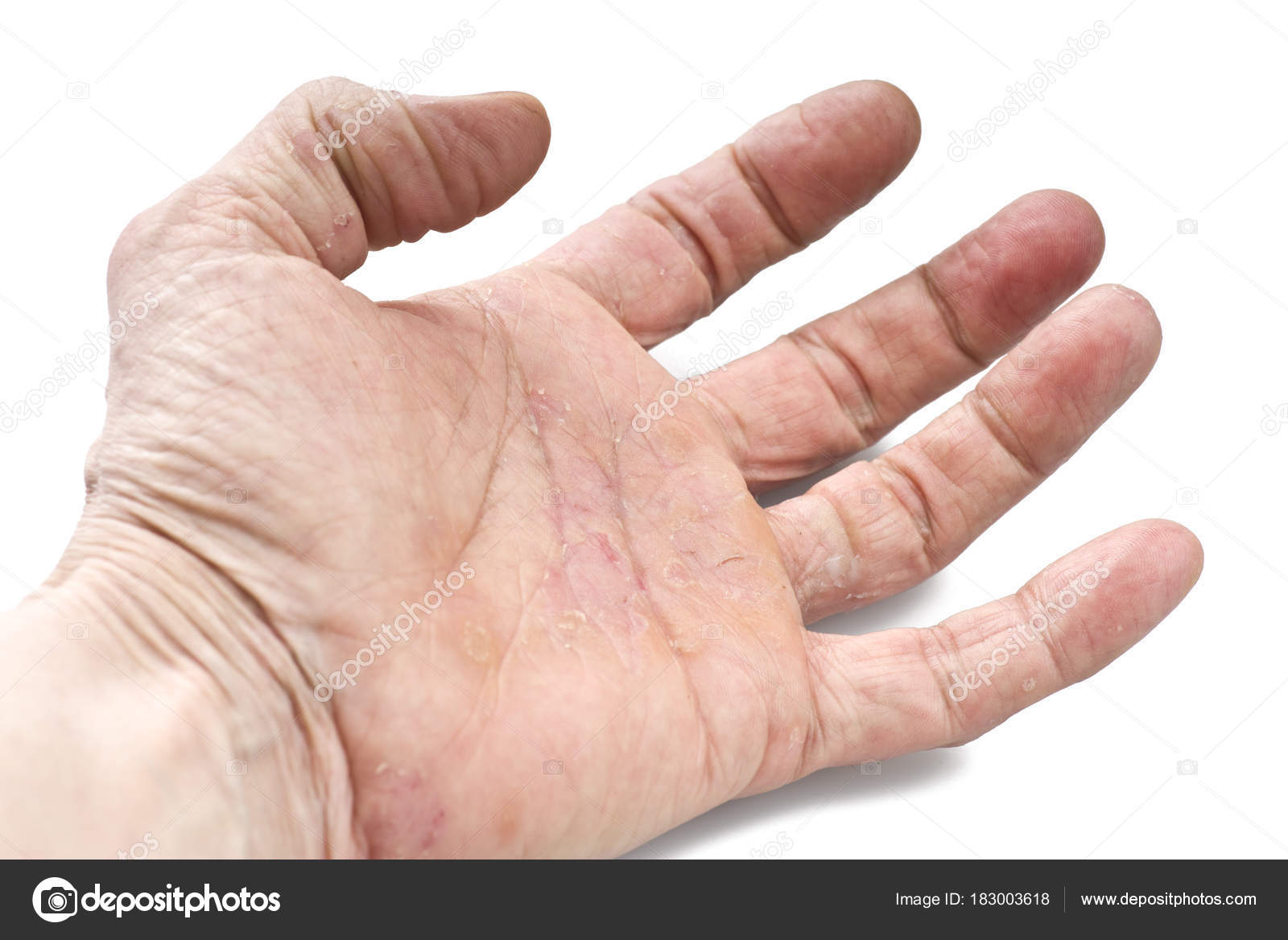 Болезни кожи на суставах заболевания тазобедреного сустава