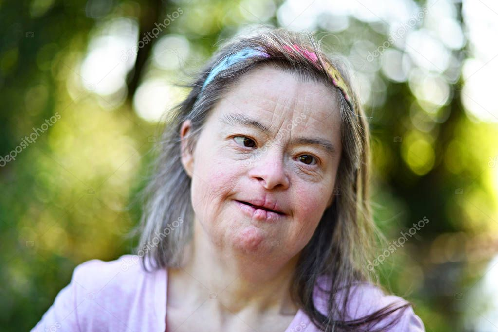 kong-down-syndrome-women-pussy-flash