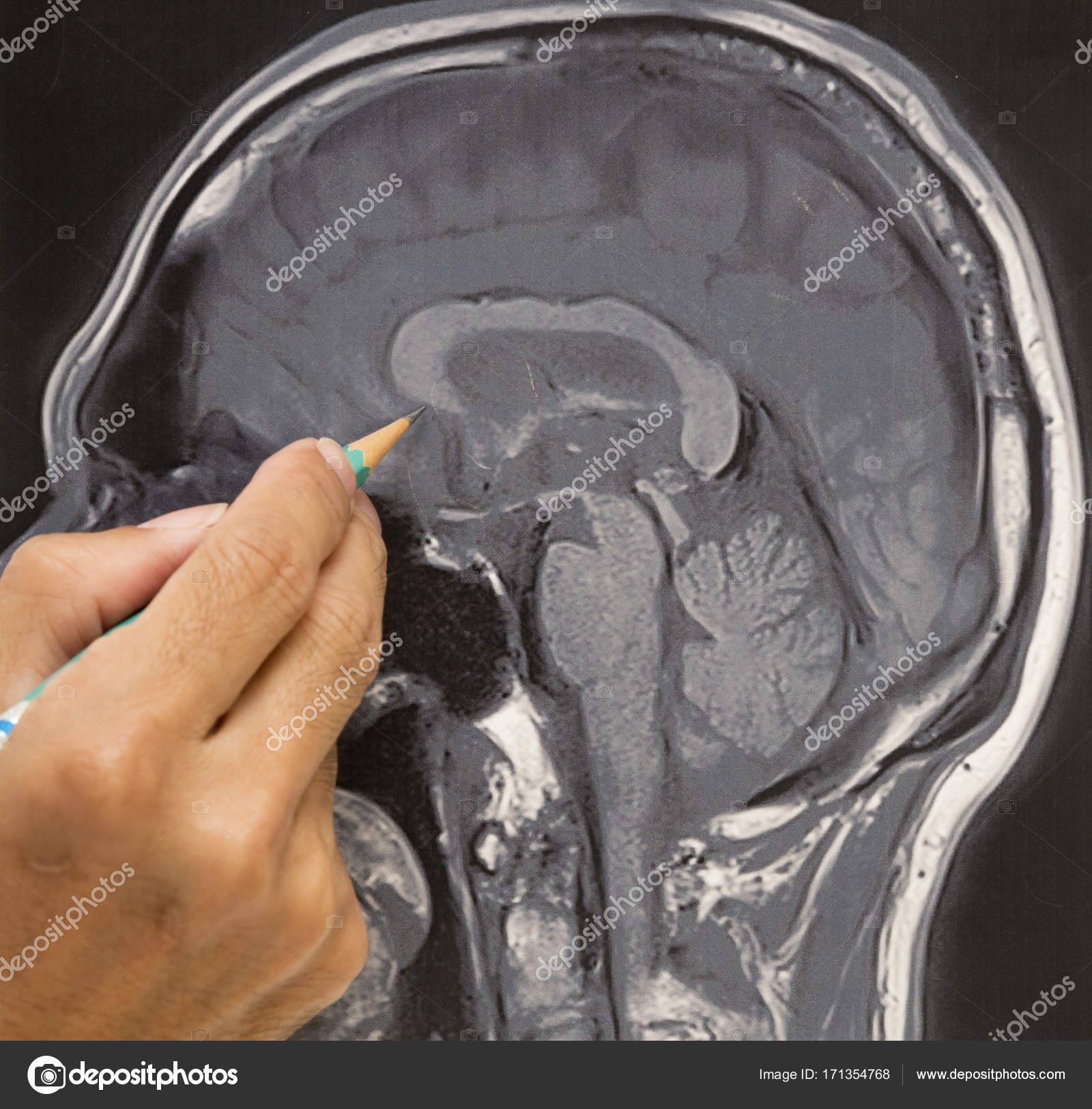 MRI brain picture and doctor\'s hand — Stock Photo © srikijt #171354768