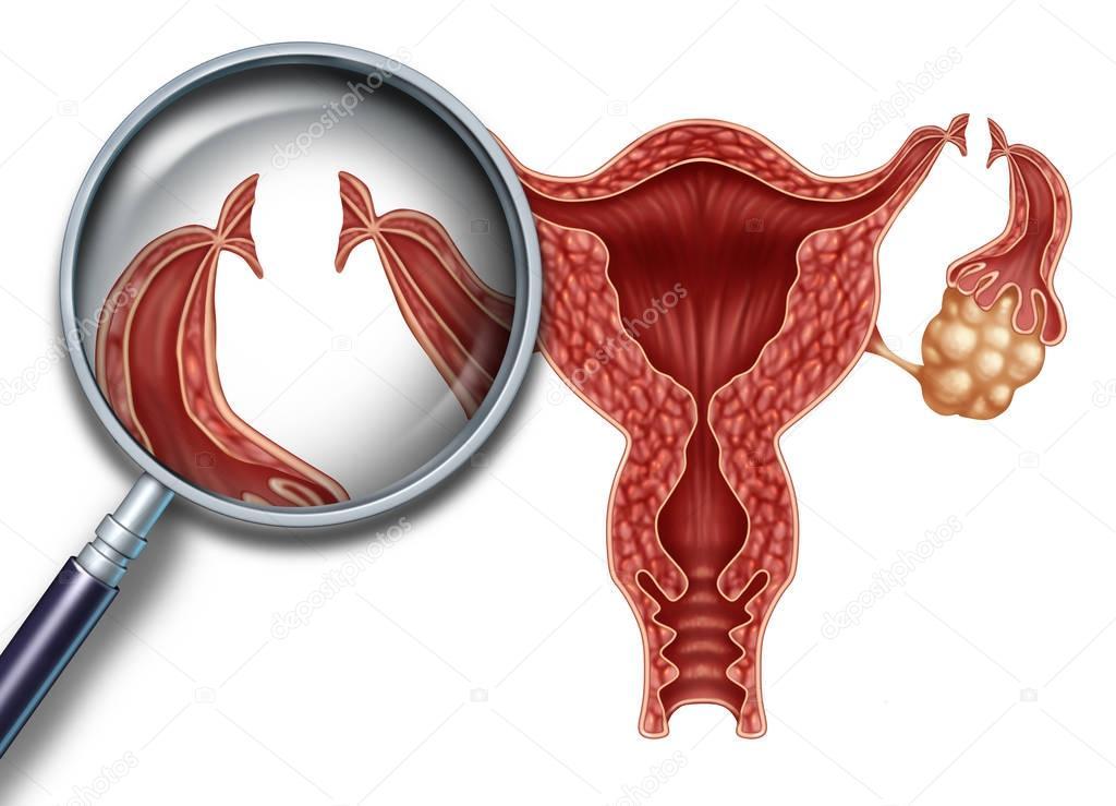 GlissadeМолодая компания возможна ли беременность без маточных труб естественным путем ведущих