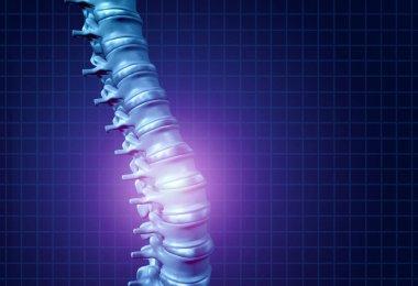 Back Spine Pain