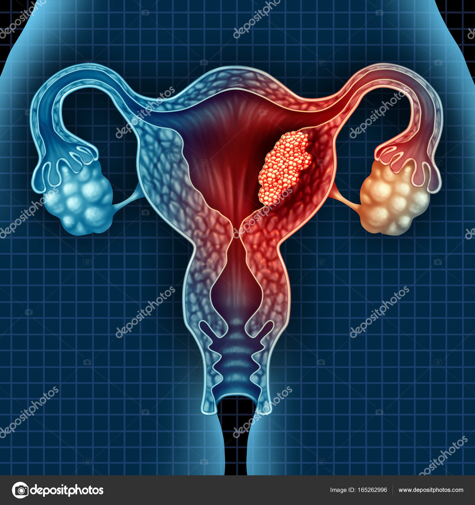 Uterus cancer concept stock photo lightsource 165262996 uterus cancer concept stock photo buycottarizona