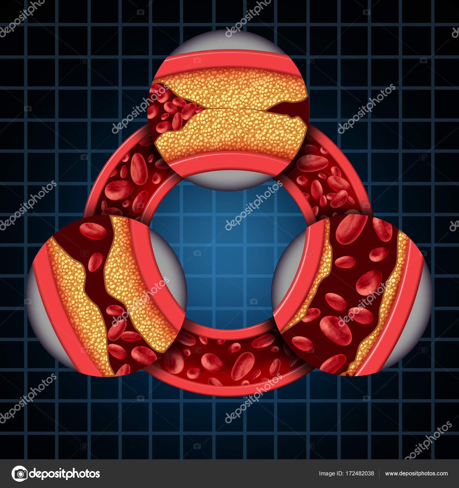 Diagrama de síntomas de la enfermedad de la arteria — Foto de stock ...