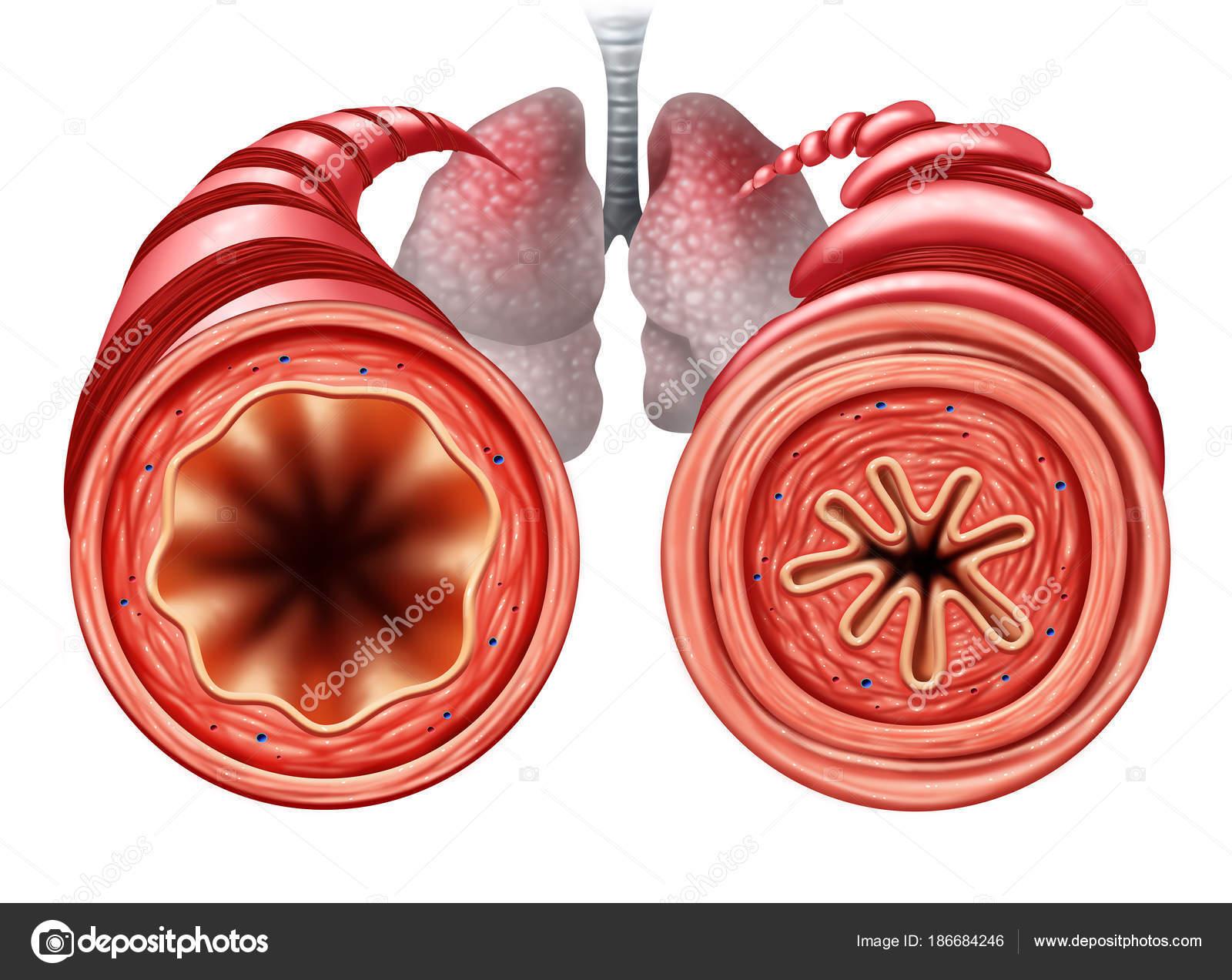 Diagrama de asma — Fotos de Stock © lightsource #186684246