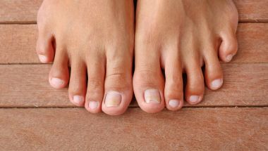 Damaged toenail, broken nail