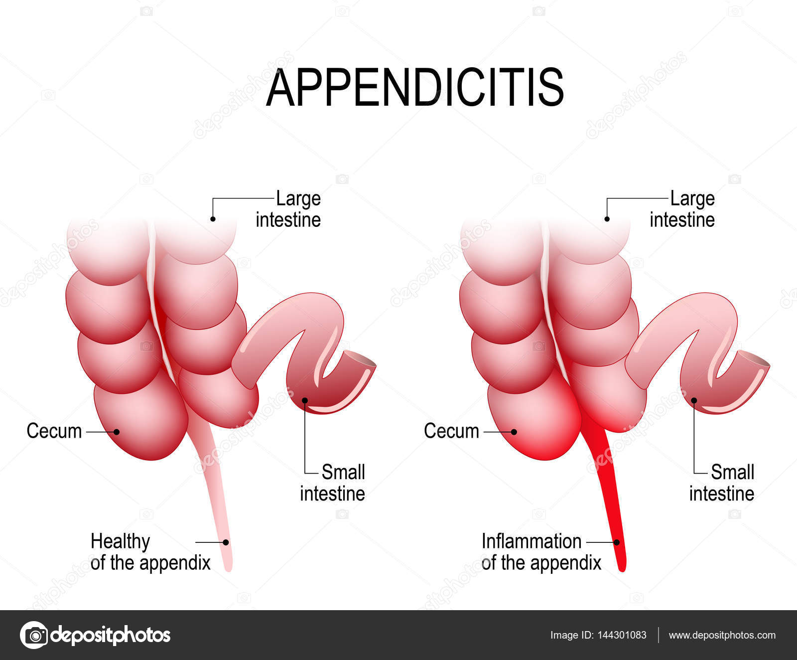 Appendicitis. Healthy and Inflamed appendix. — Stock Vector ...