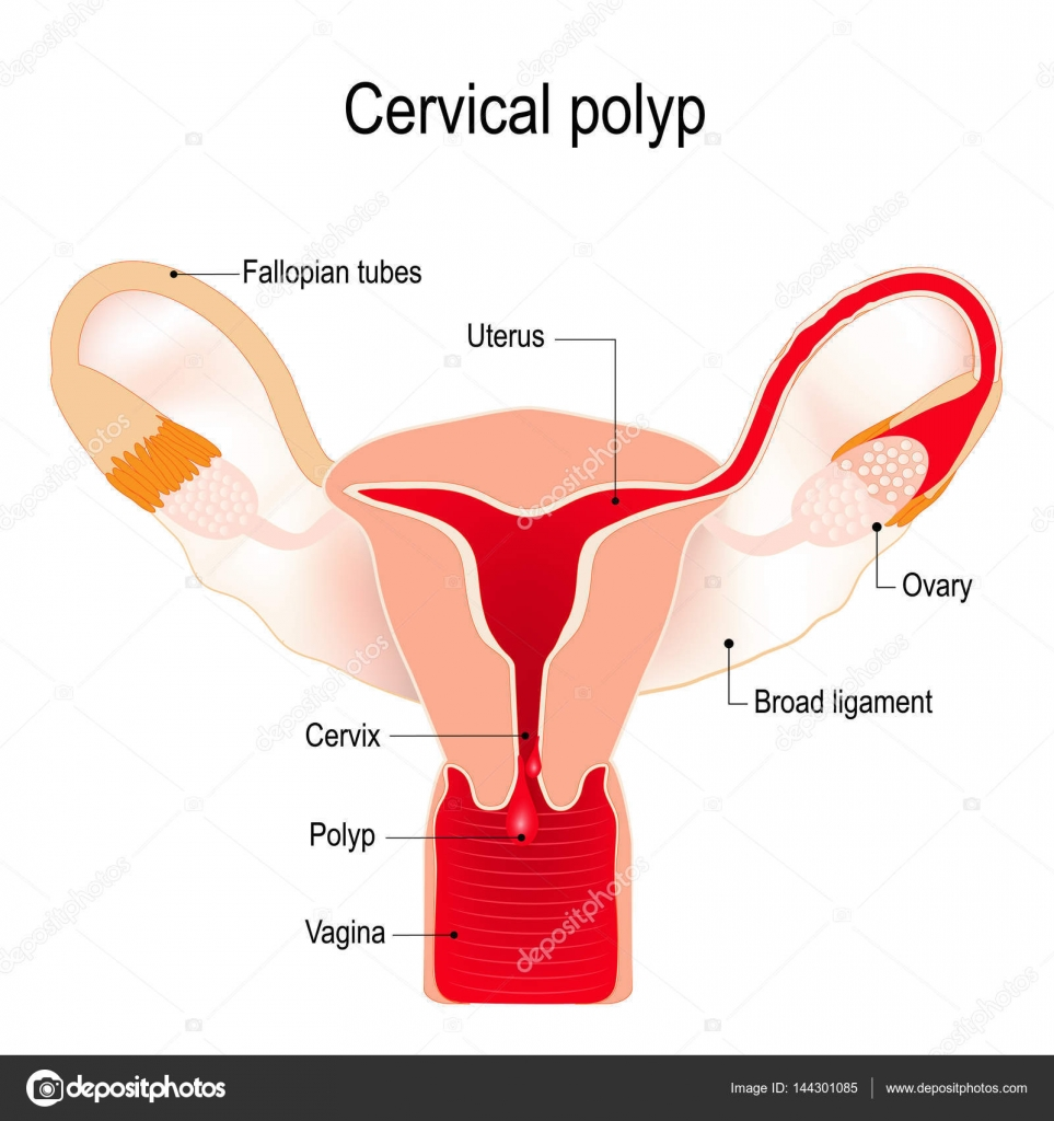 Cervical Polyp On The Uterus Stock Vector Edesignua 144301085