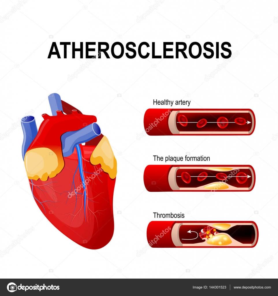 Etapas de la aterosclerosis: arteria sana, la formación de placa y ...