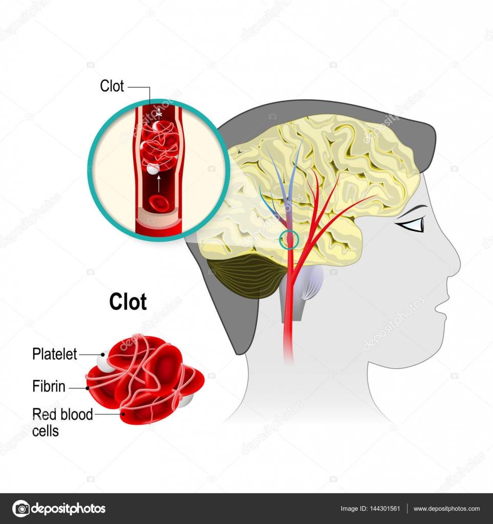 Infarto cerebral. accidente cerebrovascular cerebro — Vector de ...