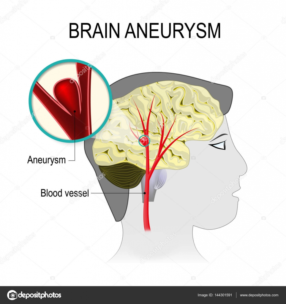 Blood Vessels In The Brain With Aneurysm Stock Vector Edesignua
